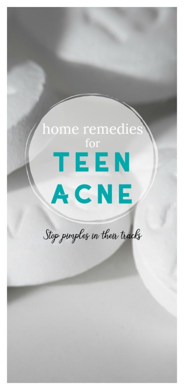 5 Home Remedies for Teen Acne | Natural treatment for oily skin and pimples | TodaysCreativeLife.com